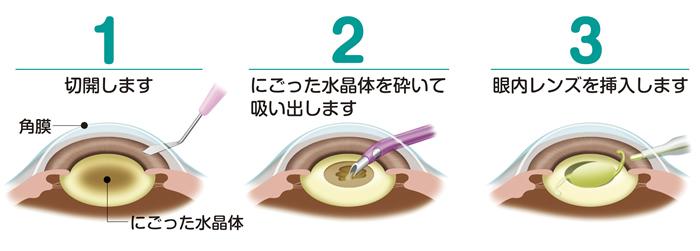 白内障の治療