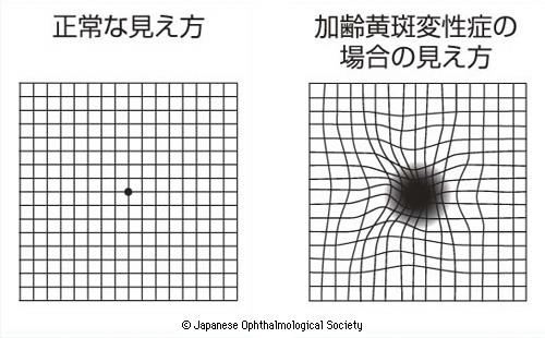 正常な見え方・加齢黄斑変性の場合の見え方